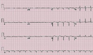 心电图解析:心脏淀粉样变性