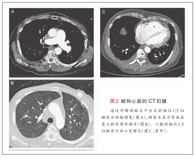 肺ct怎么看图解