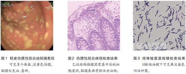 芽孢油镜手绘图
