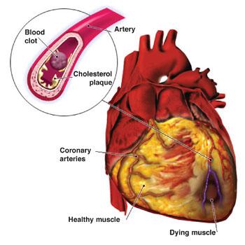 筛查和诊断 CVD 的新工具