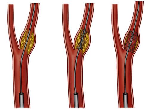 颈动脉内膜中层厚度(cIMT)的变化能否预测心血管事件?