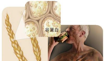 解密进食谷物后腹泻