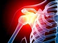风湿性多肌痛的临床概述