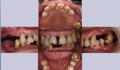 种植需以完善的牙周治疗为前提