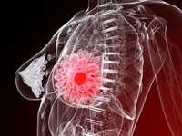 在乳腺癌幸存者中,体育活动对生物标志物的影响