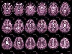 胎儿神经影像学的进展